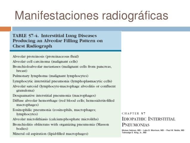 Manifestaciones radiográficas Patrón nodular Enfermedades granulomatosas Sarcoidosis, silicosis, neumonía porhipersensi...