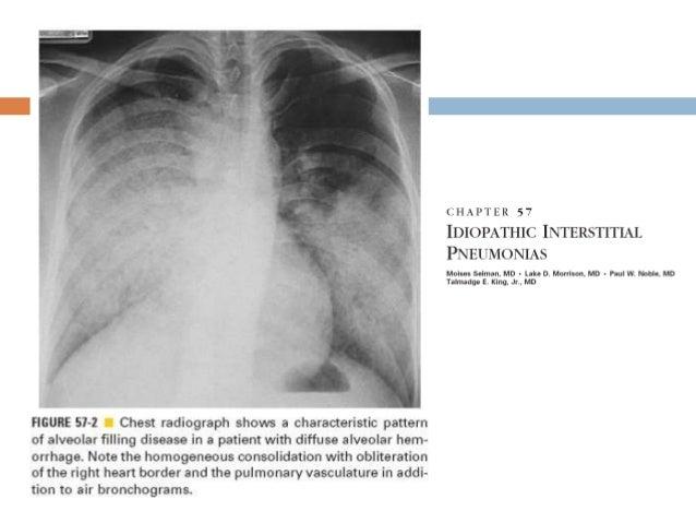 Manifestaciones radiográficas Patrón linear o reticular Se ve en la mayoría de los ILDs En las zonas mas bajas Pulmón ...