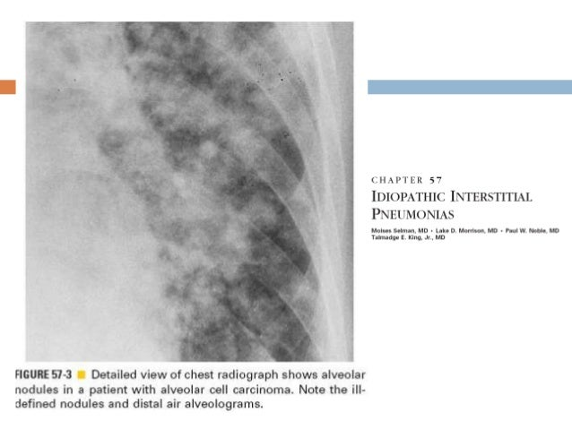Manifestaciones radiográficas Tomografía computada La radiografía simple falla en el 10% de los casos TAC con cortes de...