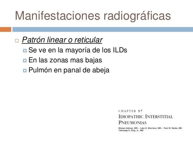 Determinación funcional Resistencia al flujo FEV1 FEF 25%-75% Generalmente no esta aumentada en los ILDs