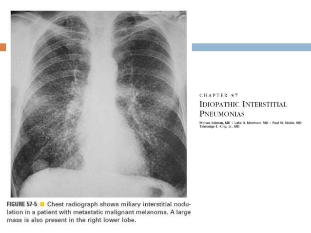 Determinación funcional Intercambio gaseoso PO2 PCO2 Diferencia alveolar-arterial de O2 Durante ejercicio y en reposo...