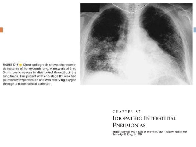 Fibrosis pulmonar idiopática(IPF) Etiología desconocida Prevalencia 0.8-64.7/100,000 Incidencia 0.4-27.1/100,000 Aumen...