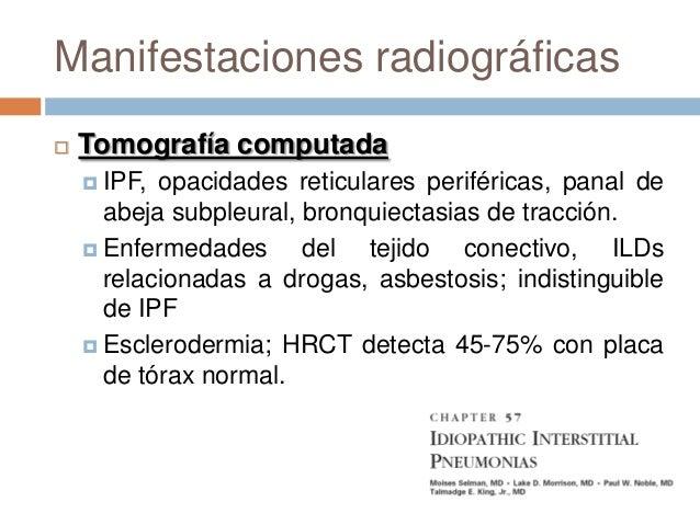 Fibrosis pulmonar idiopática(IPF) Nuevos tratamientos, interferon y,pirfenidona (antiinflamatorio) reduceprogresión en mo...