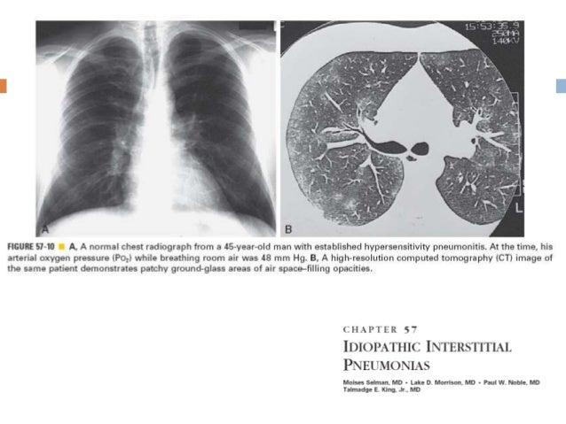 Fibrosis Pulmonar Familiar Indistinguible de IPF Mujeres mejor pronostico Mutación en el SFTPC, ELMOD2