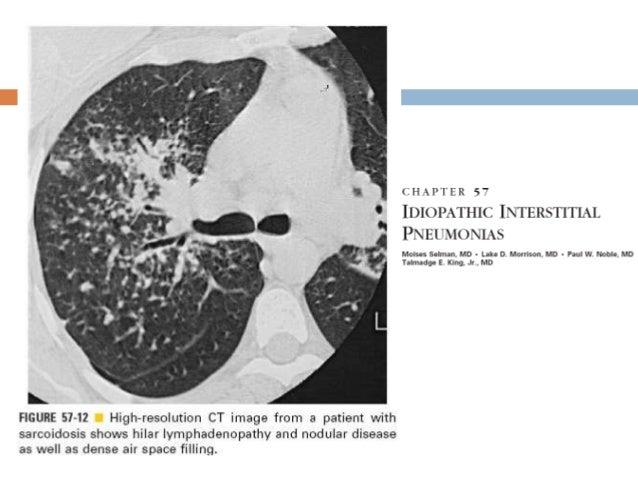 Neumonía intersticial inespecífica(NSIP)