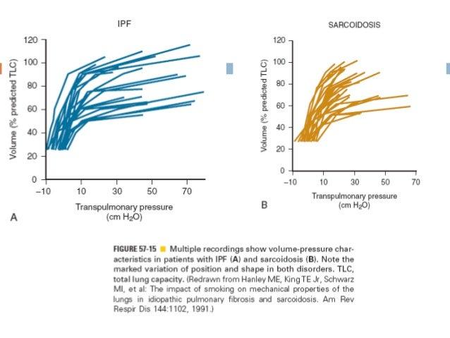 Neumonía CriptogámicaOrganizada Enfermedad neumonia-like Proliferación excesiva de tejido de granulacióndentro de los es...