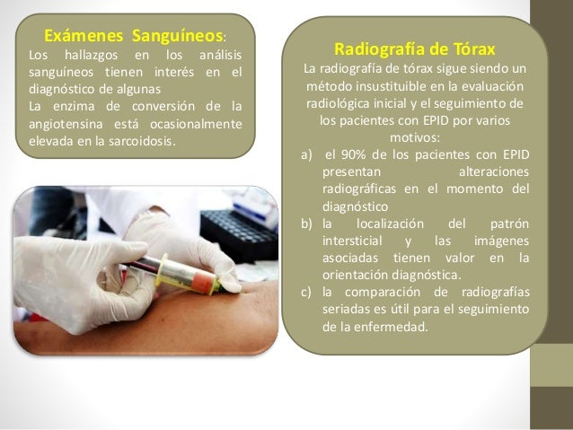 Exploración funcional respiratoria • En el 15% de los casos puede ser la primera manifestación de las EPID. • Espirometría...