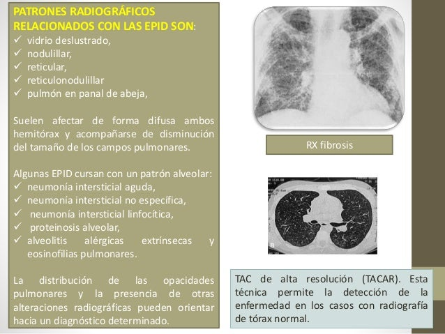 Diagnóstico Diferencial • Insuficiencia Cardiaca • Bronquiectasias • Neumonías • Linfangitis carcinomatosa • Infiltrados p...