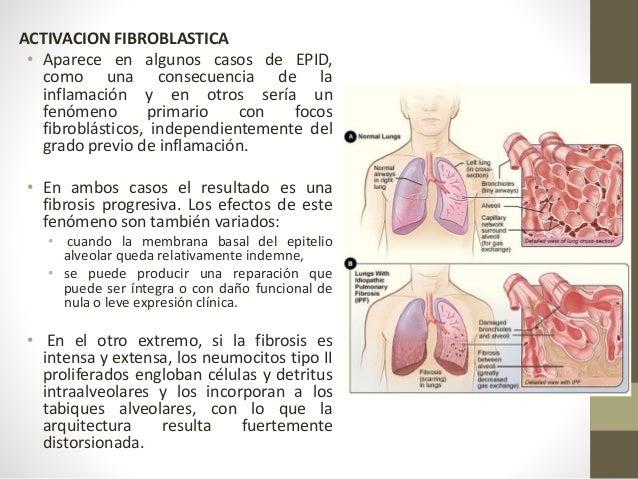 Diagnóstico: Herramientas de diagnóstico para pacientes con sospecha de enfermedad pulmonar intersticial Demográficas Edad...