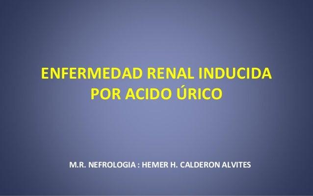 medicamento para la gota natural el acido urico causa dolor en los pies acido urico symptoms