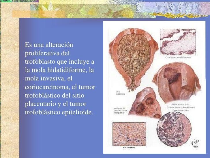Enfermedad trofoblastica gestacional Slide 2