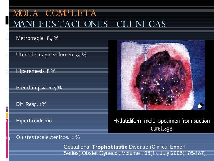 MOLA COMPLETA MANIFESTACIONES CLINICAS <ul><li>Metrorragia  84 %. </li></ul><ul><li>Utero de mayor volumen  34 %. </li></u...