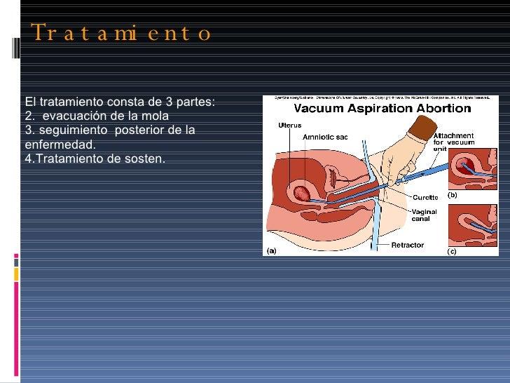 Tratamiento  <ul><li>El tratamiento consta de 3 partes: </li></ul><ul><li>evacuación de la mola  </li></ul><ul><li>seguimi...