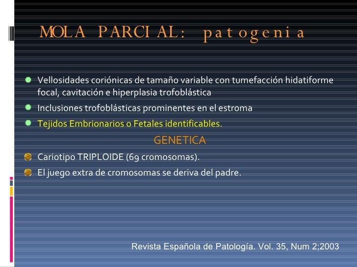 MOLA PARCIAL: patogenia  <ul><li>Vellosidades coriónicas de tamaño variable con tumefacción hidatiforme focal, cavitación ...