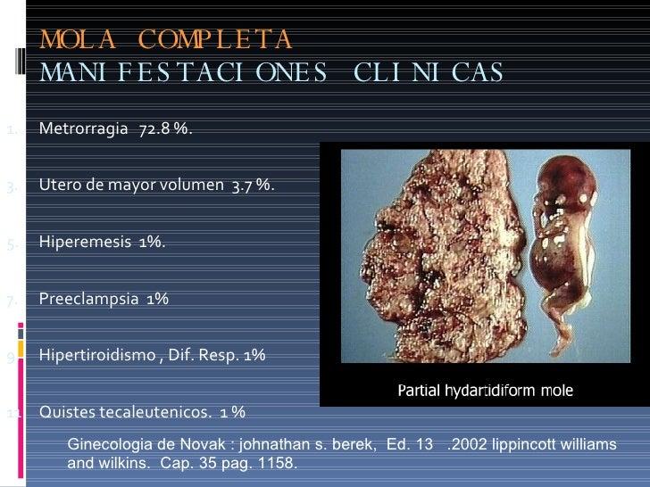 MOLA COMPLETA MANIFESTACIONES CLINICAS <ul><li>Metrorragia  72.8 %. </li></ul><ul><li>Utero de mayor volumen  3.7 %. </li>...