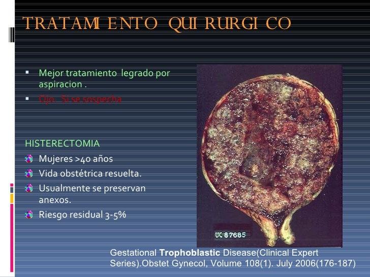 TRATAMIENTO QUIRURGICO <ul><li>Mejor tratamiento  legrado por aspiracion . </li></ul><ul><li>Ojo.  Si se sospecha  </li></...