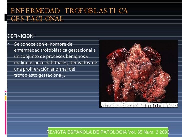 ENFERMEDAD TROFOBLASTICA GESTACIONAL <ul><li>DEFINICION: </li></ul><ul><li>Se conoce con el nombre de enfermedad trofoblás...
