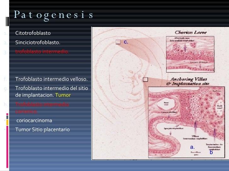 Patogenesis  <ul><li>Citotrofoblasto </li></ul><ul><li>Sinciciotrofoblasto. </li></ul><ul><li>trofoblasto intermedio. </li...