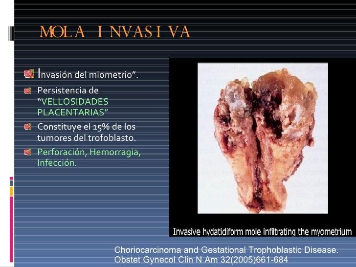 """MOLA INVASIVA <ul><li>I nvasión del miometrio"""". </li></ul><ul><li>Persistencia de """" VELLOSIDADES PLACENTARIAS"""" </li></ul><..."""