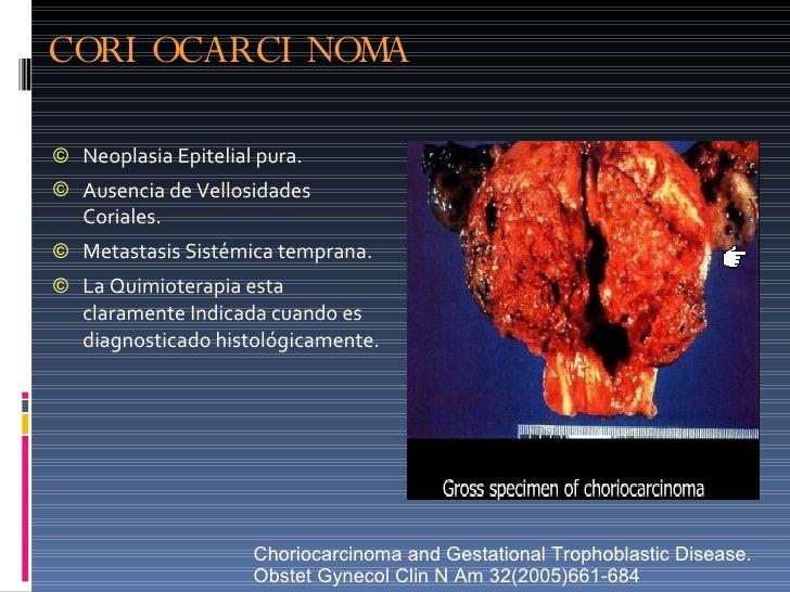 CORIOCARCINOMA <ul><li>Neoplasia Epitelial pura. </li></ul><ul><li>Ausencia de Vellosidades Coriales. </li></ul><ul><li>Me...