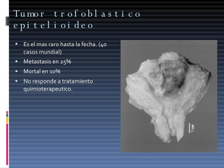 Tumor trofoblastico epitelioideo <ul><li>Es el mas raro hasta la fecha. (40 casos mundial) </li></ul><ul><li>Metastasis en...