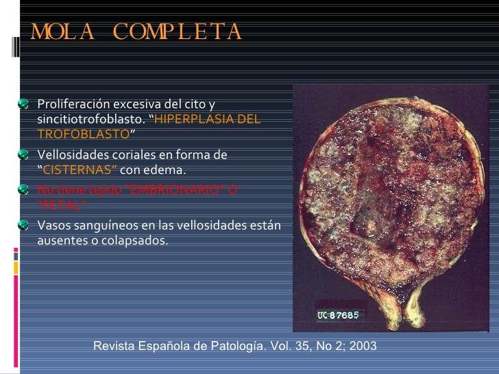 """MOLA COMPLETA <ul><li>Proliferación excesiva del cito y sincitiotrofoblasto. """" HIPERPLASIA DEL TROFOBLASTO """"  </li></ul><u..."""