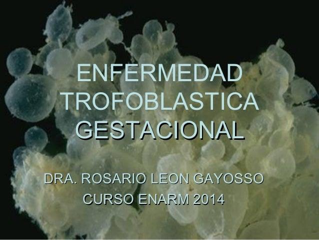 ENFERMEDAD TROFOBLASTICA GESTACIONALGESTACIONAL DRA. ROSARIO LEON GAYOSSODRA. ROSARIO LEON GAYOSSO CURSO ENARM 2014CURSO E...