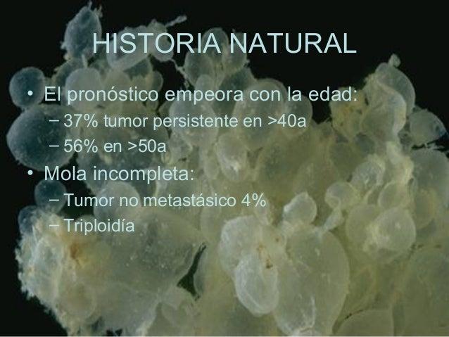 HISTORIA NATURAL • El pronóstico empeora con la edad: – 37% tumor persistente en >40a – 56% en >50a • Mola incompleta: – T...