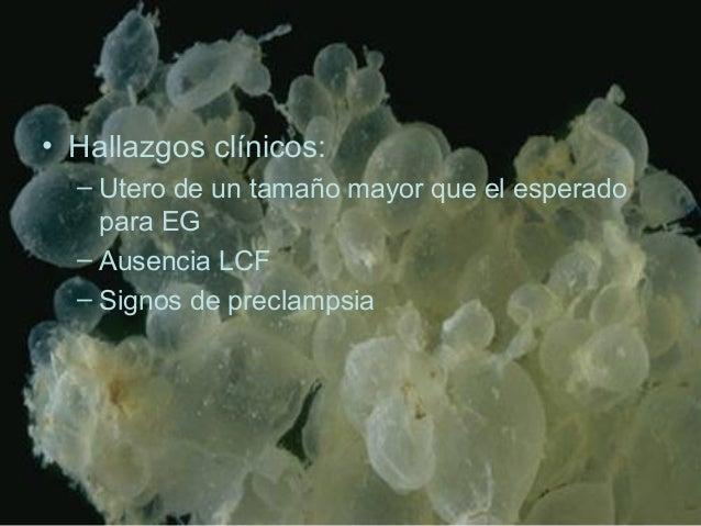 • Hallazgos clínicos: – Utero de un tamaño mayor que el esperado para EG – Ausencia LCF – Signos de preclampsia