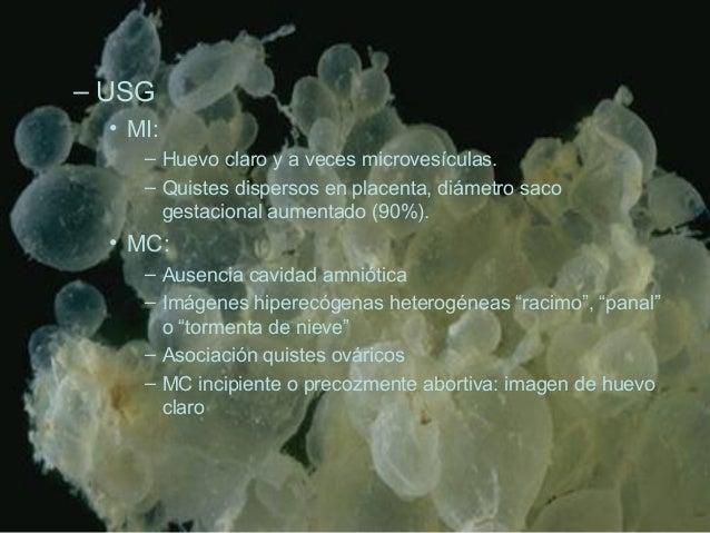 – USG • MI: – Huevo claro y a veces microvesículas. – Quistes dispersos en placenta, diámetro saco gestacional aumentado (...