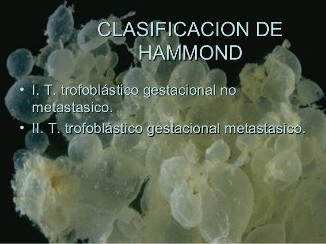 CLASIFICACION DECLASIFICACION DE HAMMONDHAMMOND • I. T. trofoblástico gestacional noI. T. trofoblástico gestacional no met...