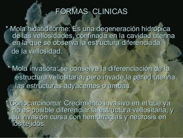 FORMAS CLINICASFORMAS CLINICAS * Mola hidatidiforme: Es una degeneración hidropica* Mola hidatidiforme: Es una degeneració...