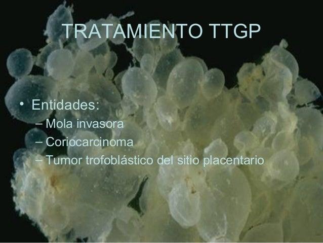 TRATAMIENTO TTGP • Entidades: – Mola invasora – Coriocarcinoma – Tumor trofoblástico del sitio placentario