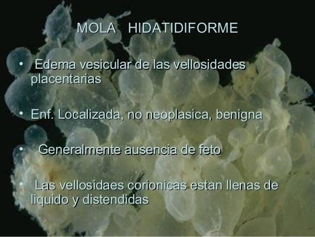 MOLA HIDATIDIFORMEMOLA HIDATIDIFORME • Edema vesicular de las vellosidadesEdema vesicular de las vellosidades placentarias...