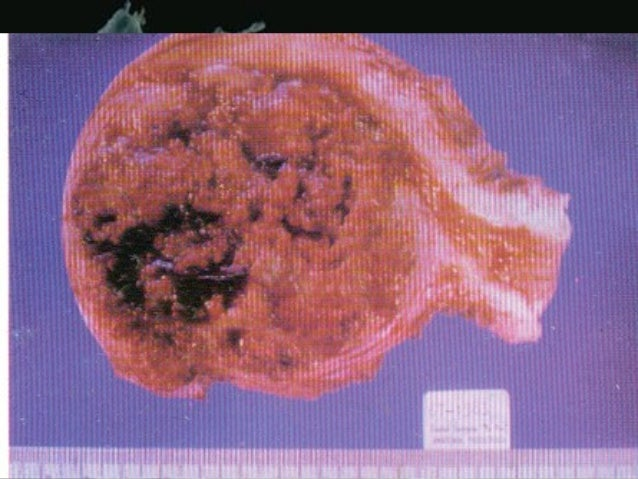 • Robbins Pathologic Basis of Disease • Novak's Gynecology: Jonathan S. Berek, 2002 by Lippincott Williams & Wilkins • Wil...