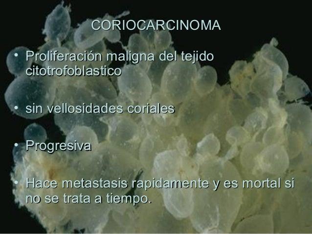 CORIOCARCINOMACORIOCARCINOMA • Proliferación maligna del tejidoProliferación maligna del tejido citotrofoblasticocitotrofo...