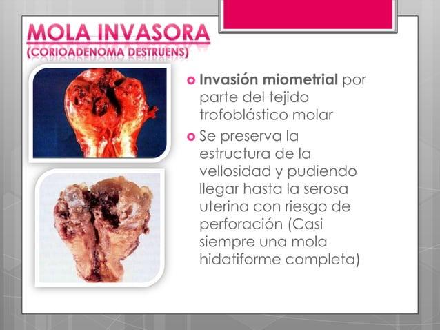 Características morfológicas                                        •Masa única, blanda y hemorrágica, o como múltiples nó...