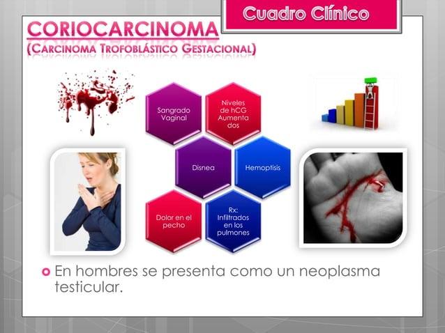 Sangrado Vaginal (90-100%)     de color rojizo-negruzcoAusencia de latido cardíacofetal (100% en mola completa)Volumen ute...