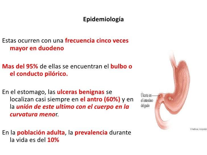 Epidemiología<br />Estas ocurren con una frecuencia cinco veces mayor en duodeno<br />Mas del 95% de ellas se encuentran e...