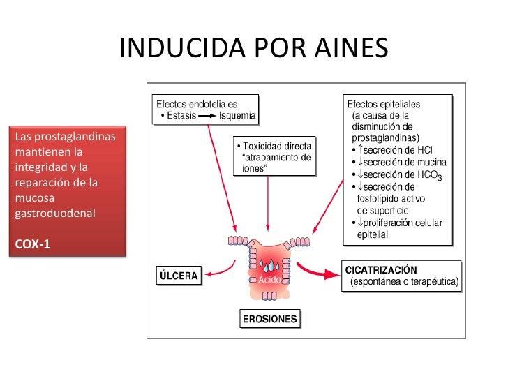 INDUCIDA POR AINES<br />Las prostaglandinas mantienen la integridad y la reparación de la mucosa gastroduodenal<br />COX-1...