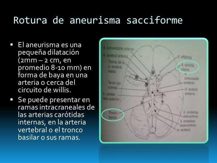 Enfermedad vascular cerebral hemorr gica for Dilatacion 2mm