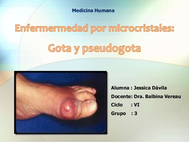 Alumna : Jessica Dávila Docente: Dra. Balbina Vereau Ciclo : VI Grupo : 3 Medicina Humana