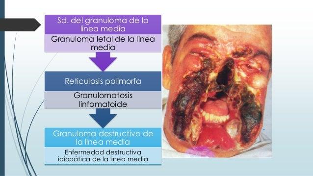 Granuloma destructivo de la linea media Enfermedad destructiva idiopática de la linea media Reticulosis polimorfa Granulom...