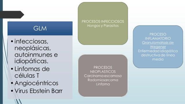 GLM •infecciosas, neoplásicas, autoinmunes e idiopáticas. •Linfomas de células T •Angiocéntricos •Virus Ebstein Barr