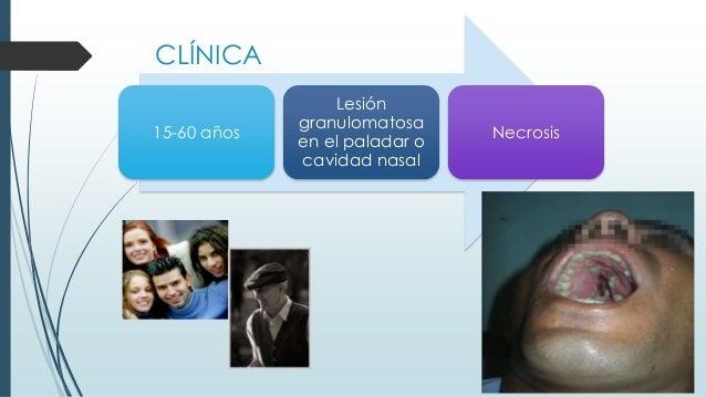 CLÍNICA 15-60 años Lesión granulomatosa en el paladar o cavidad nasal Necrosis