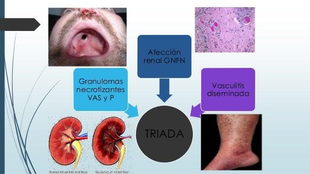 TRIADA Granulomas necrotizantes VAS y P Afección renal GNFN Vasculitis diseminada