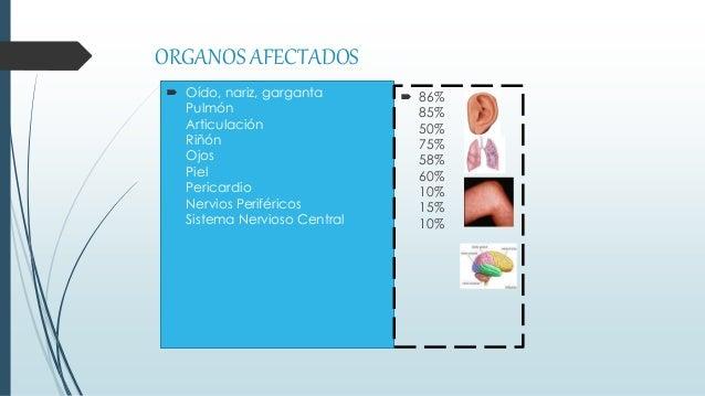 ORGANOS AFECTADOS  Oído, nariz, garganta Pulmón Articulación Riñón Ojos Piel Pericardio Nervios Periféricos Sistema Nervi...