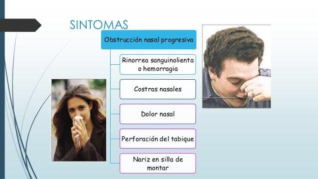 Obstrucción nasal progresiva Rinorrea sanguinolienta o hemorragia Costras nasales Dolor nasal Perforación del tabique Nari...