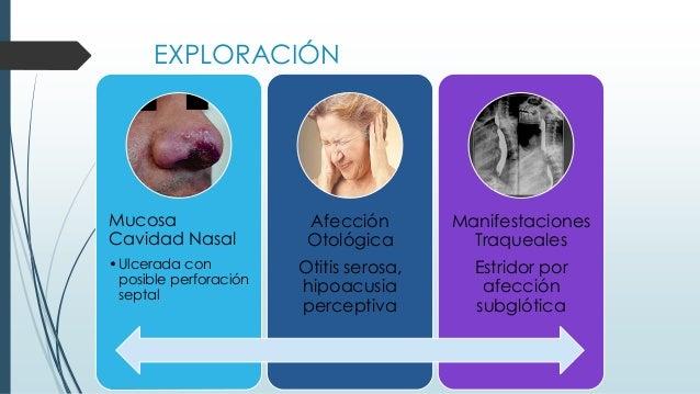EXPLORACIÓN Mucosa Cavidad Nasal •Ulcerada con posible perforación septal Afección Otológica Otitis serosa, hipoacusia per...
