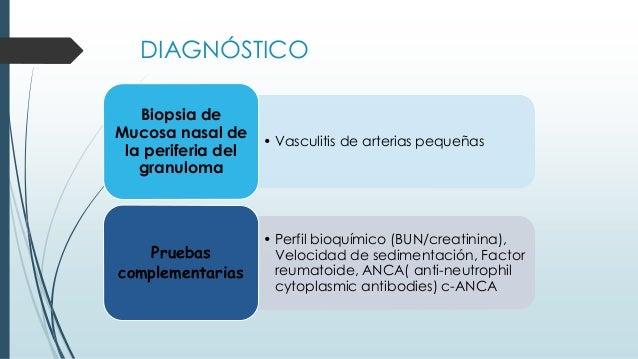 DIAGNÓSTICO • Vasculitis de arterias pequeñas Biopsia de Mucosa nasal de la periferia del granuloma • Perfil bioquímico (B...